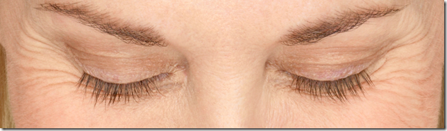 Older woman's eyes with usual eyelashes before Latisse application Jacksoneye, Lake VIlla, IL