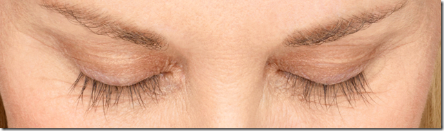 Woman's eyes with longer eyelashes 8 weeks after Latisse application