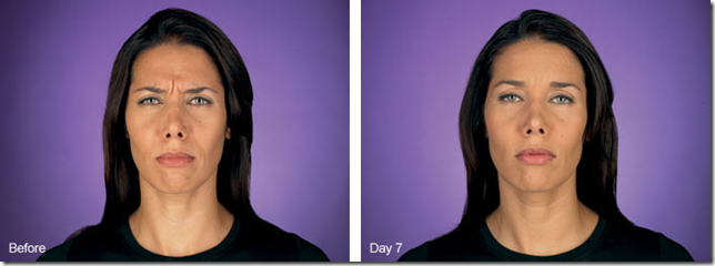 Black haired woman's face with Botox before and after day 7
