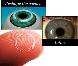 Intacs - corneal inserts on a finger, in an eye and with cornea reshaped