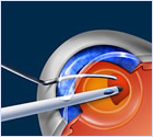 Lake_Villa-_Illinois-_Jackson-Eye-Cataract_Surgery_Diagram_2_-_Copy.jpg