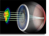 how does lasik work