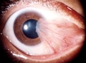 Photo of an eye partly covered by a growth from the corner of an eye affected by pterygium