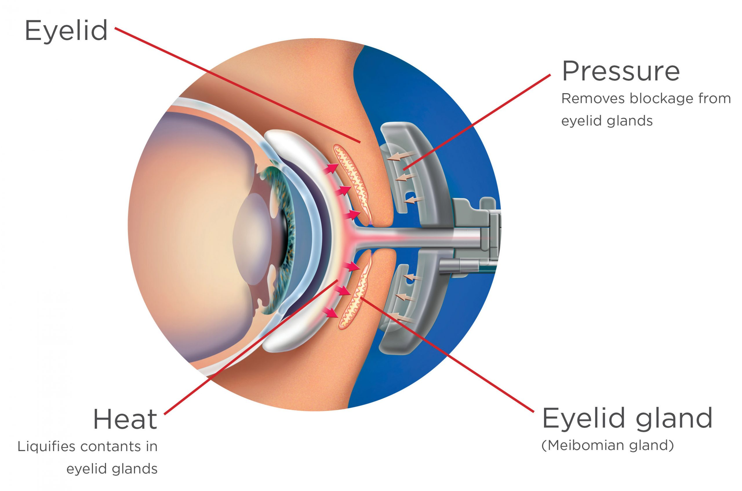 Cross section of an eye with lipiflow procedure being performed.